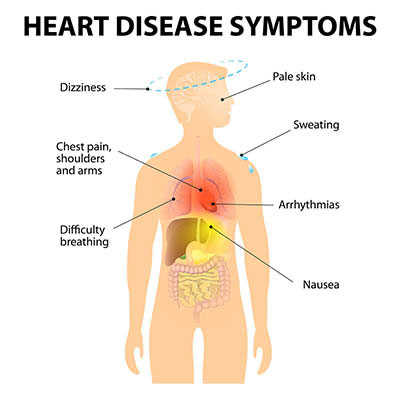 50-plus-report-heart-disease-causes-and-natural-remedies-tammy-moorehead-2